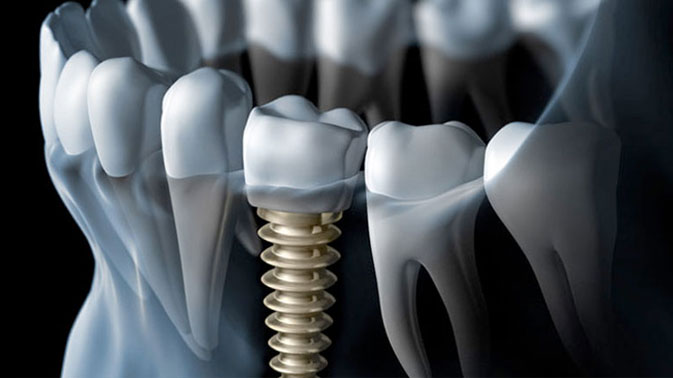 5 things you need to know before getting Dental Implants